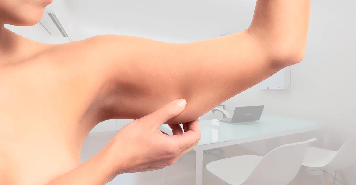 Braquioplastia – Como eliminar a flacidez do braço?