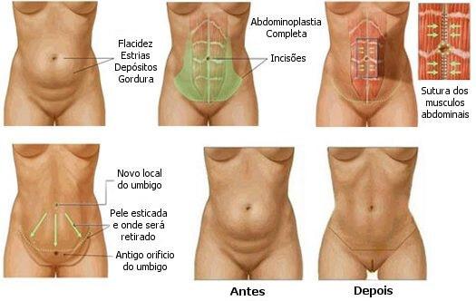 como se faz uma abdominoplastia